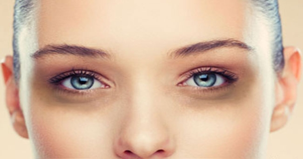 Dark Circles Under Eye In Hindi