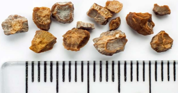 How to Prevent Kidney Stones in summer