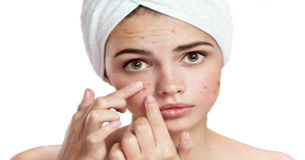 Acne Scars Remedy Hindi