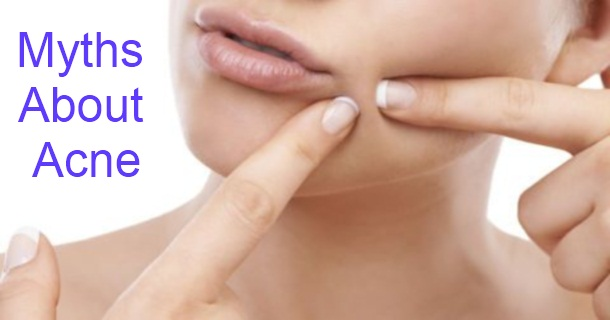 Common Myths About Acne in Hindi
